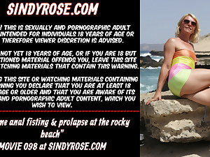 Extraordinary anal fisting & prolapse at the rocky beach